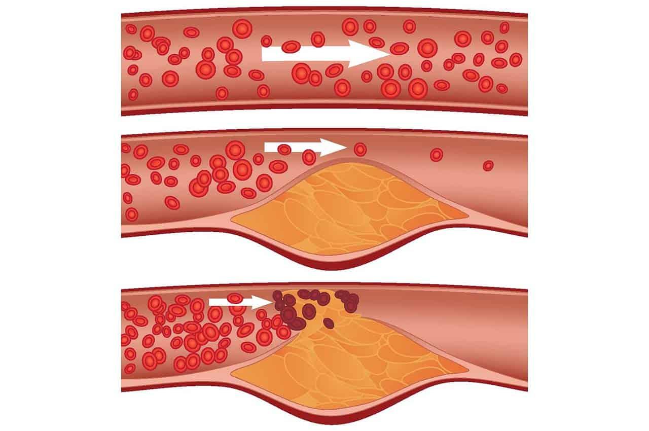 Повышенный холестерин в сосудах